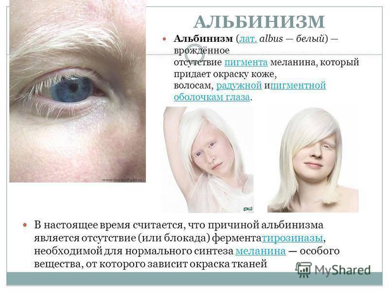 Люди альбиносы: цвет глаз, интересные фото и факты