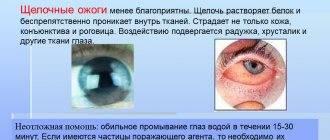 Ожог слизистой глаза парами хлора средства