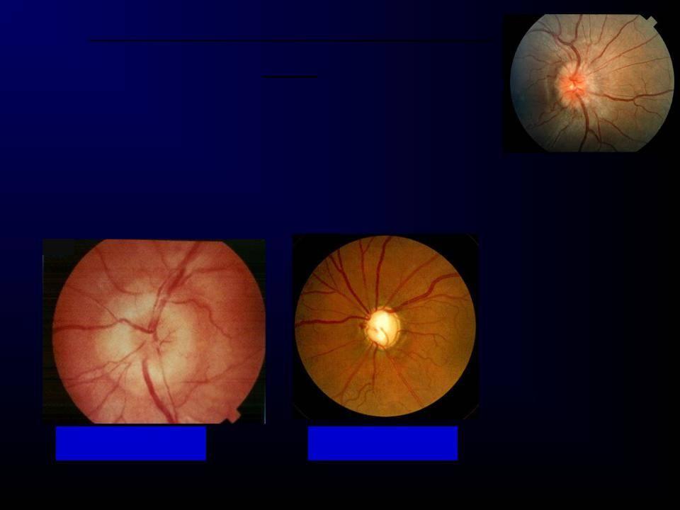 Воспаление зрительного нерва - причины, симптомы и лечение