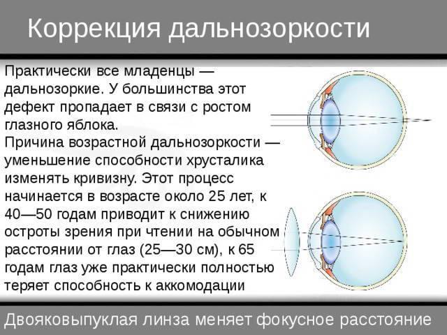 Коррекция пресбиопии: подбор способа лечения возрастной дальнозоркости (лазер, операция, очки и линзы, упражнения для глаз)