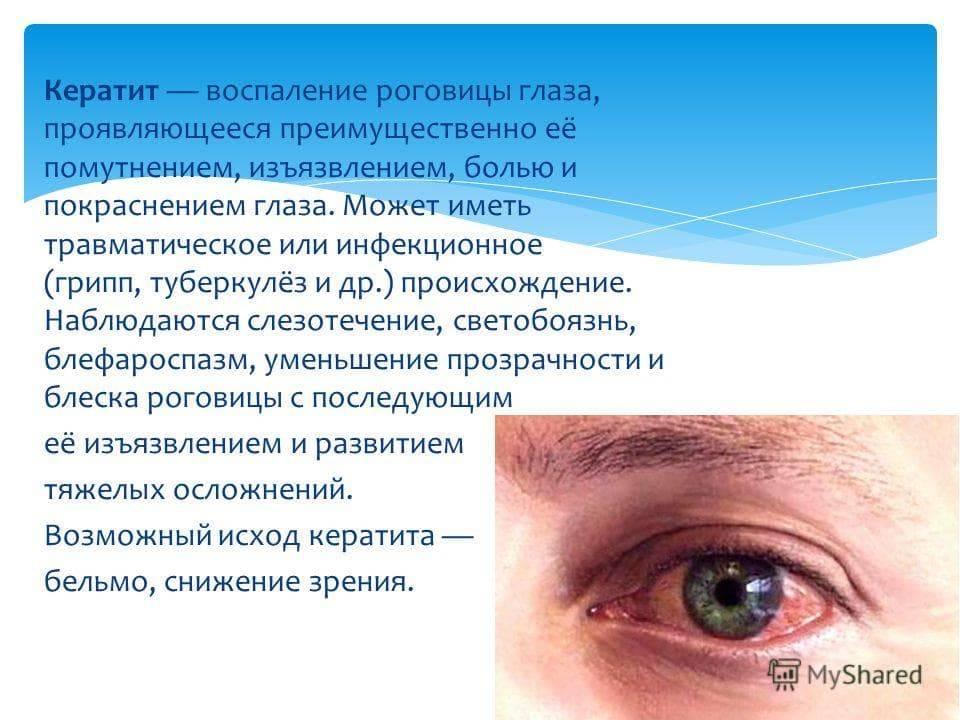 Светобоязнь у взрослых и детей: причины, симптомы, лечение | компетентно о здоровье на ilive