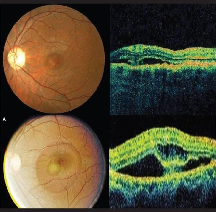 Хориоретинит глаза: что это такое, виды (центральный серозный, токсоплазмозный, туберкулезный, сифилитический, острый, очаговый), причины, симптомы, лечение, диагностика, осложнения, берут ли в армию