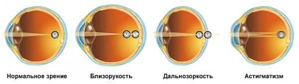 Почему падает зрение во время беременности