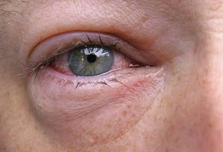 Симптомом каких болезней могут быть красные белки глаз у взрослого?