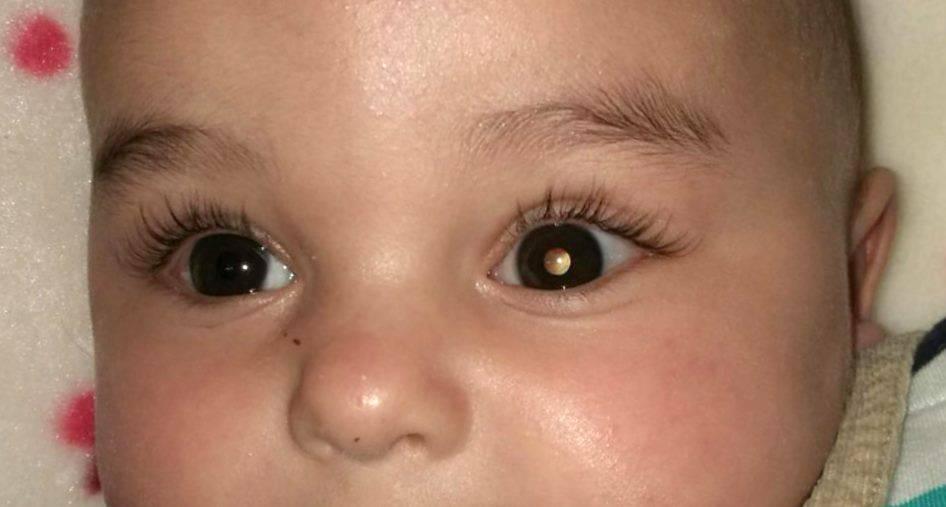 Рак глаза симптомы фото у детей — ooncologiya