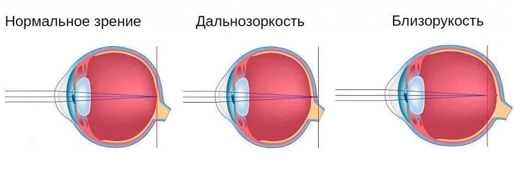 Важный вопрос о миопии и выборе очков: близорукость — это минус или плюс зрения?