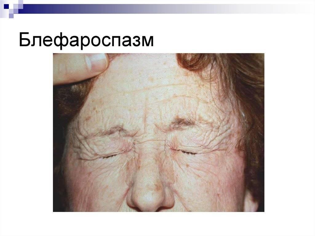 Блефароспазм, лечение, симптомы, причины возникновения. vseozrenii.ru