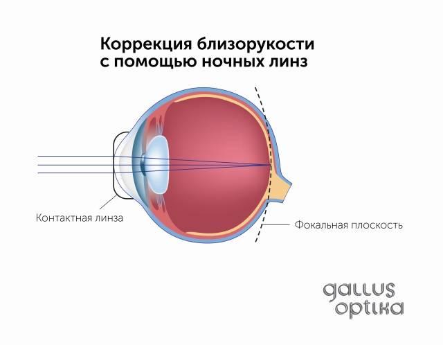Операция на глаза при близорукости: сколько стоит и какую выбрать?