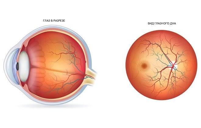 Сосуды глаз (сетчатки и глазного дна): симптомы заболеваний и лечение сосудистой оболочки коагуляцией
