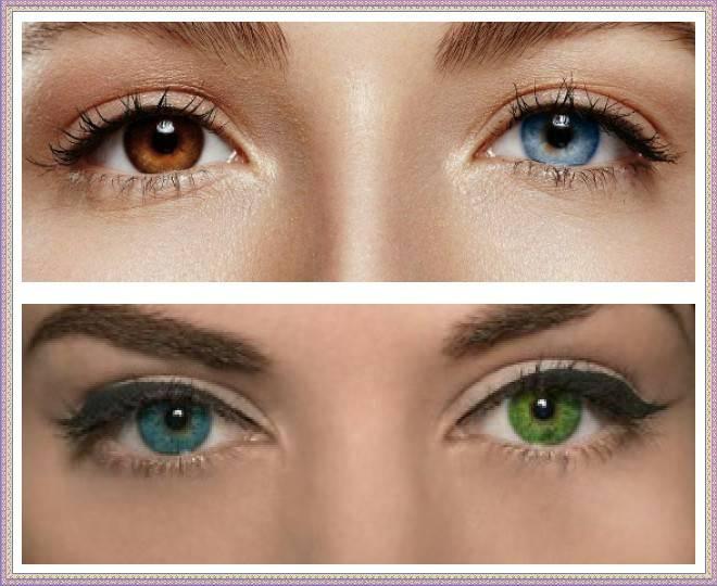 Люди с разным цветом глаз: почему так происходит