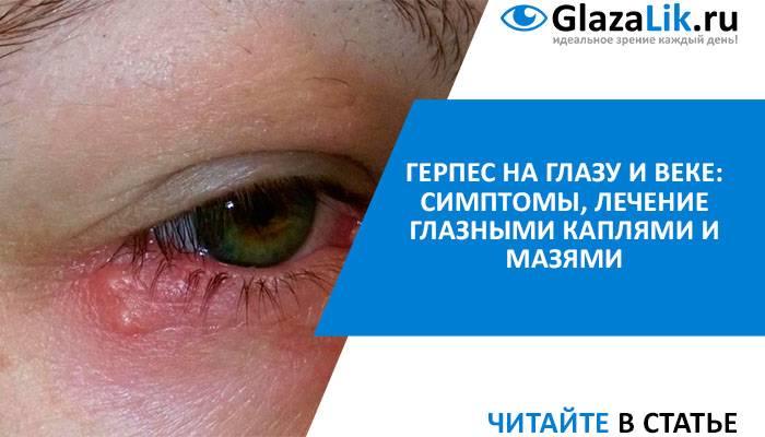 Герпес на глазу (офтальмогерпес) — лечение, симптомы (фото)