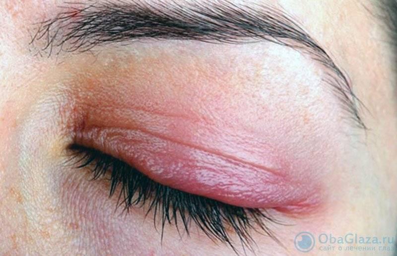 Покраснение вокруг глаз: причины и лечение