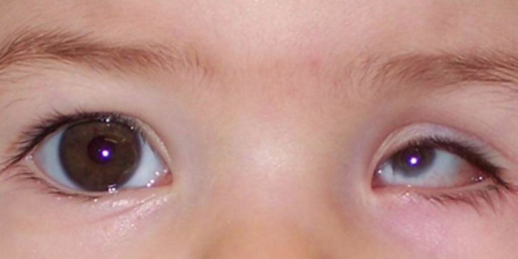 Микрофтальм: нарушение зрения у взрослых и детей, размеры глазного яблока, степени, виды, лечение дефекта