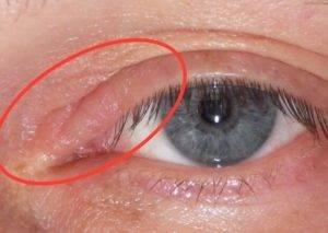 """Чешутся уголки глаз: причины и методы лечения - """"здоровое око"""""""