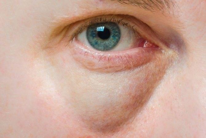 Болит глаз под верхним веком при моргании и надавливании, больно нажимать