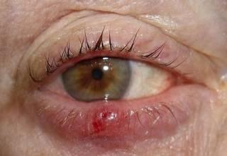 Трахома глаза
