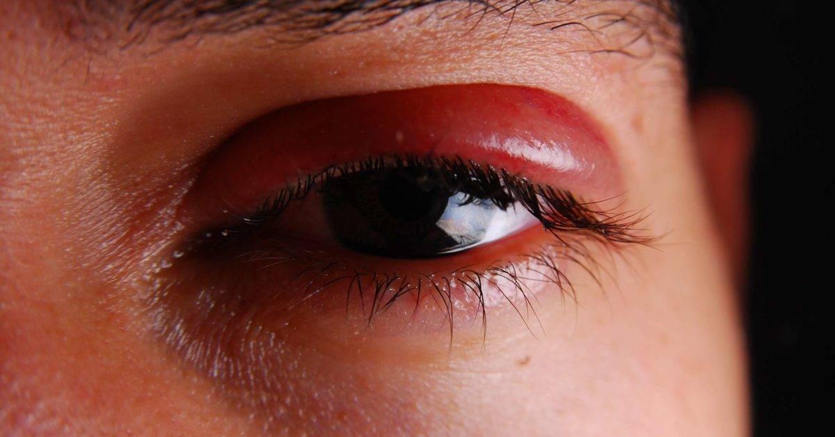 Появился синяк под глазом без удара причины