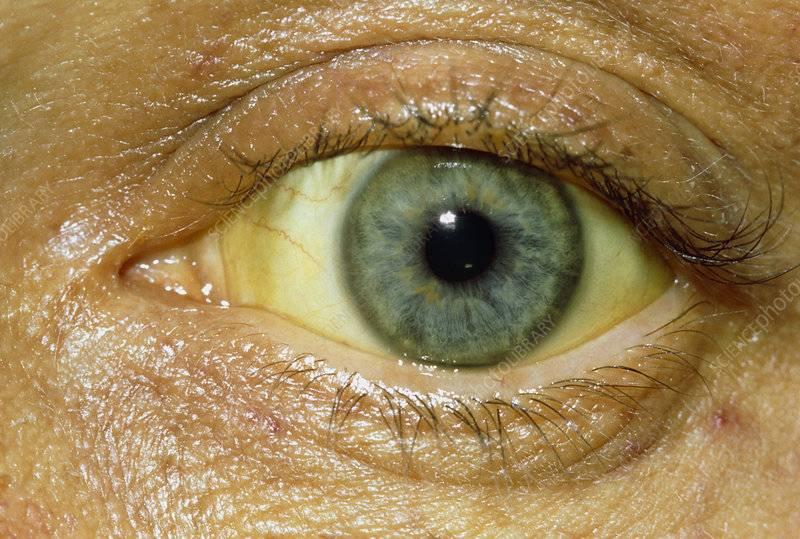 Желтые белки глаз: причины и возможные последствия, у новорожденного, желтое пятно на глазу