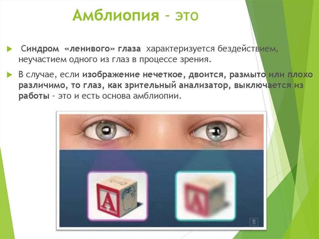 Амблиопия у детей: виды, симптомы, диагностика и лечение