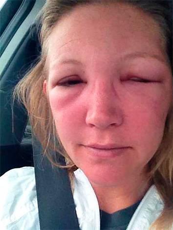 Как снять аллергический отек с глаз — что делать