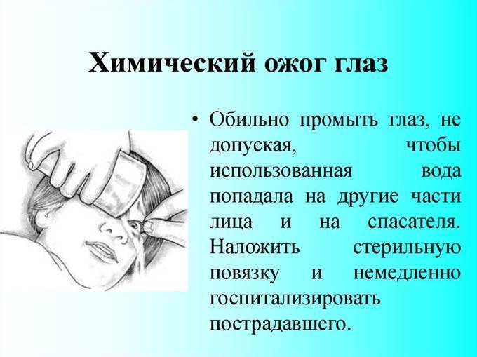 Известь попала в глаза: что делать? методы оказания помощи - sammedic.ru
