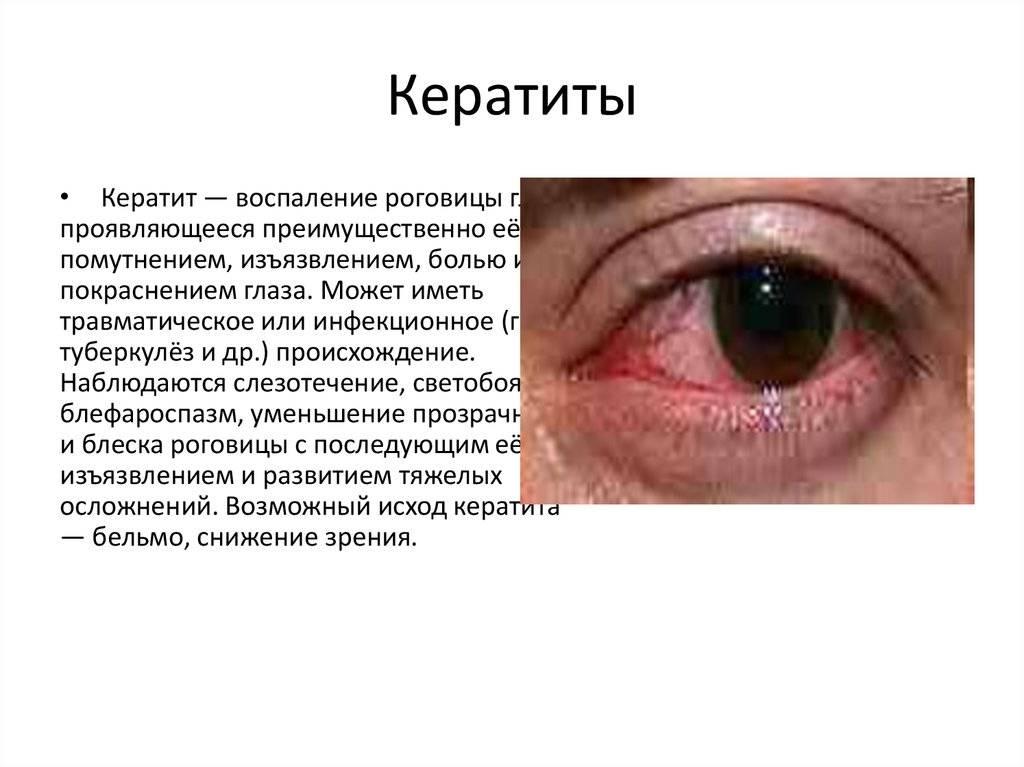 Кератит: симптомы нитчатого, акантамебного, вирусного, краевого, герпетического - лечение болезни