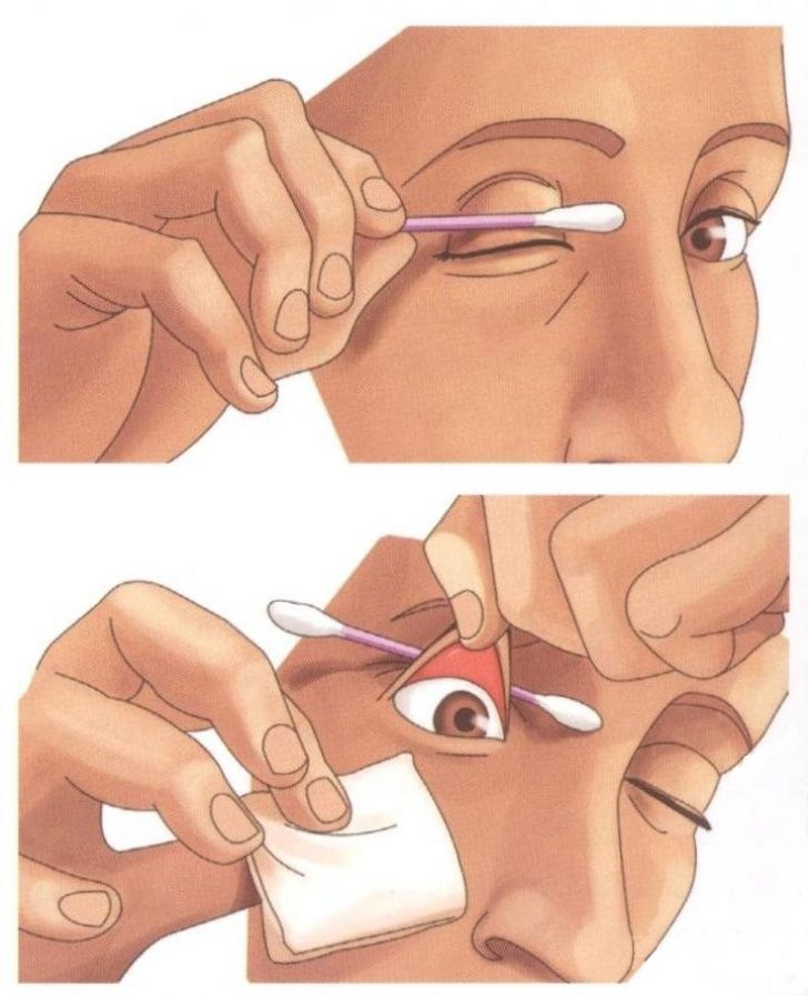 """Как вынуть соринку из глаза: себе, ребенку, без помощи врача - """"здоровое око"""""""
