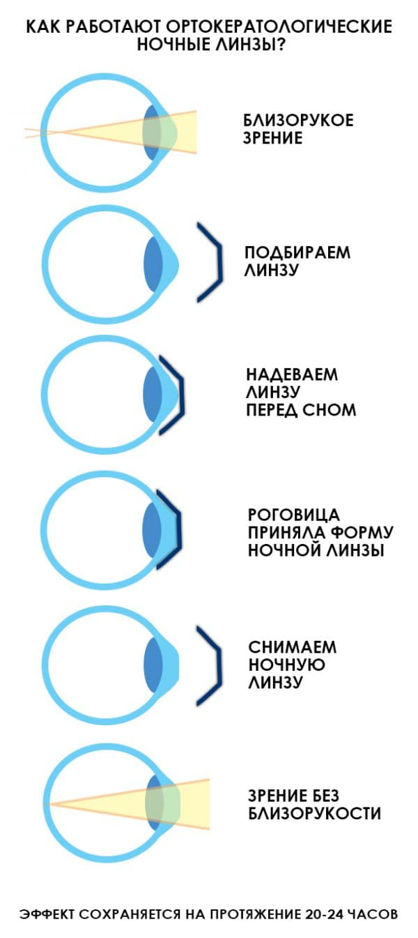 Стоит ли пользоваться контактной оптикой: плюсы и минусы линз для глаз