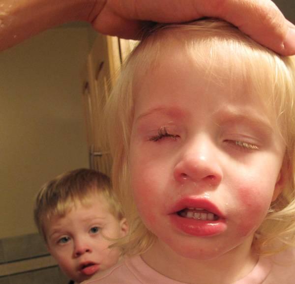 Травмы глаз. как оказать первую помощь и когда следует обратиться к врачу