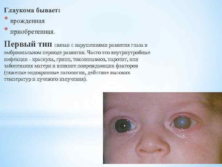 Врожденная глаукома у новорожденных детей и взрослых: симптомы, причины, лечение, диагностика, виды