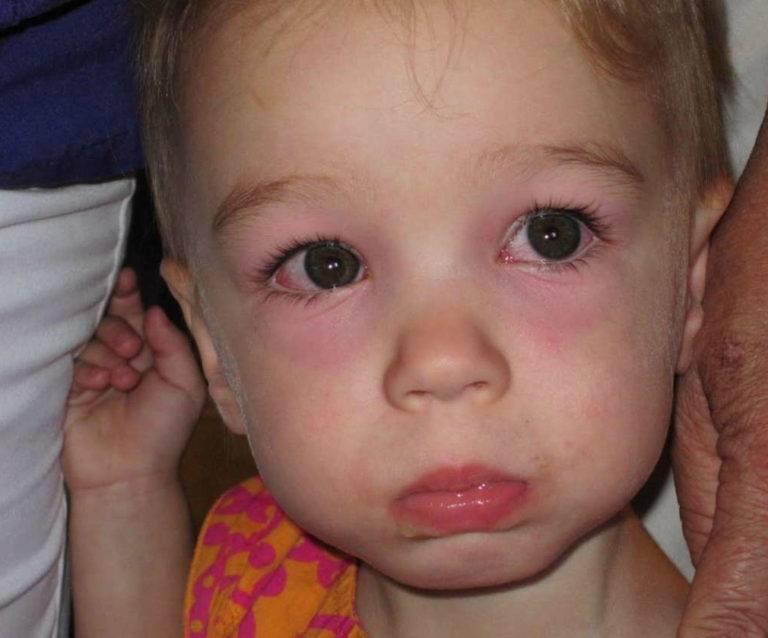У ребенка опухло верхнее веко: почему у ребенка отекают веки