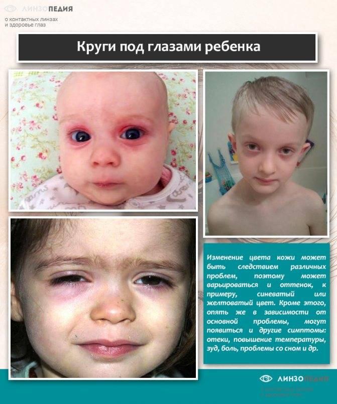 У ребенка 7 месяцев синяки под глазами