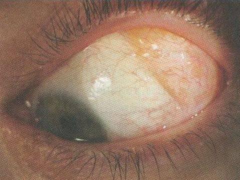 Удаление кисты глаза