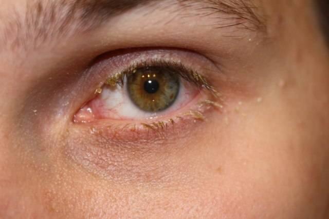 Острый конъюнктивит: причины, симптомы, лечение взрослых