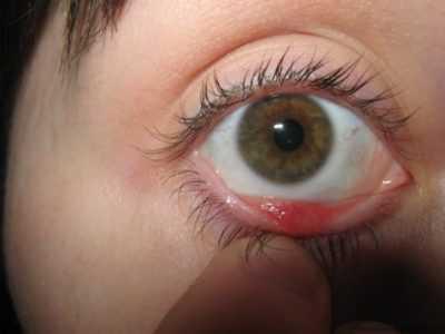 Что делать, если вскочил ячмень на глазу? как правильно лечить?