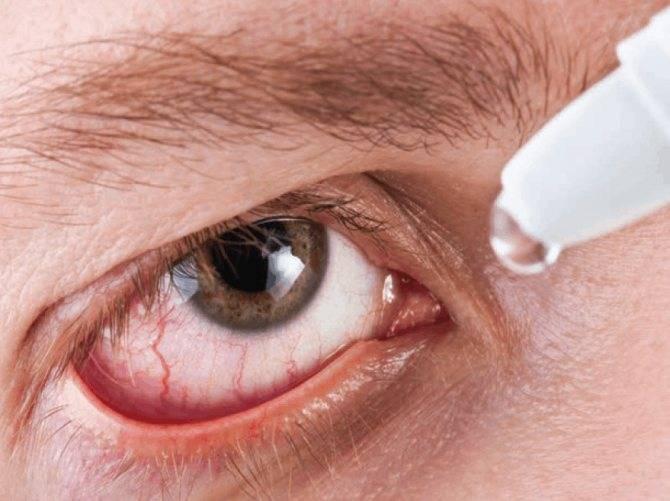 Что сделать чтобы глаза были красные pal-to.ru