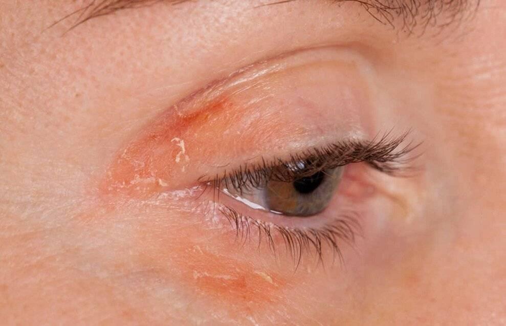 Почему слезятся глаза - причины, лечение каплями и народными средствами