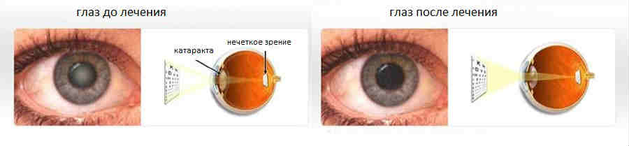 Реабилитация после замены хрусталика при катаракте: послеоперационный период