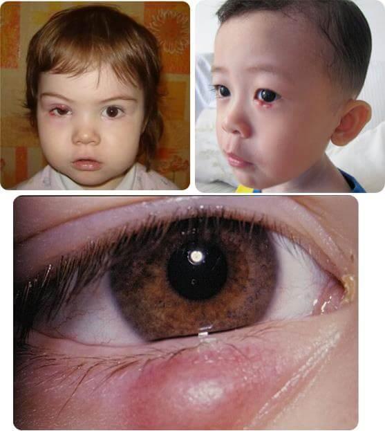 Что делать, если у ребенка на глазу вскочил ячмень? советы педиатров и некоторые народные способы