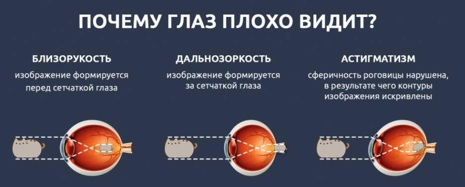 """Какое зрение считается плохим, виды проблем со зрением - """"здоровое око"""""""