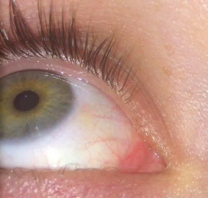 Красное пятно в глазу: причины и лечение