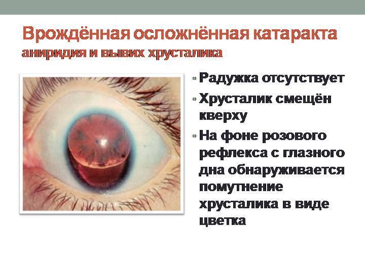 Врожденная катаракта у детей и взрослых – лечение, причины и симптомы, виды врожденной катаракты глаза