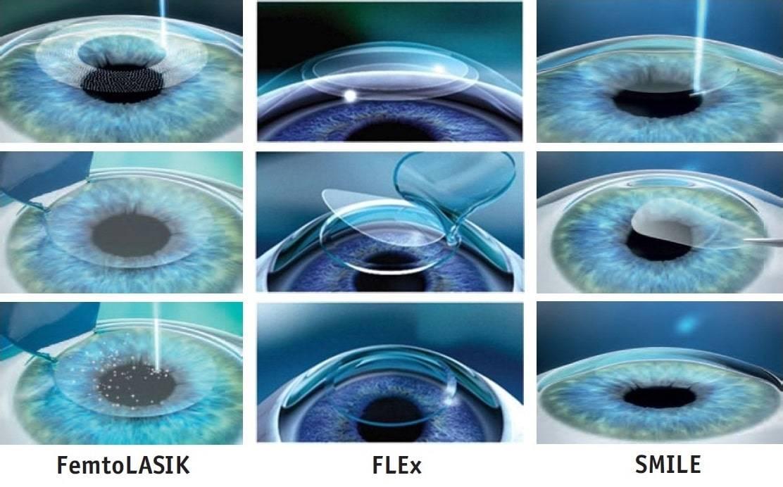 Глазные капли от катаракты: самые эффективные – список лучших для очищения хрусталика, отзывы