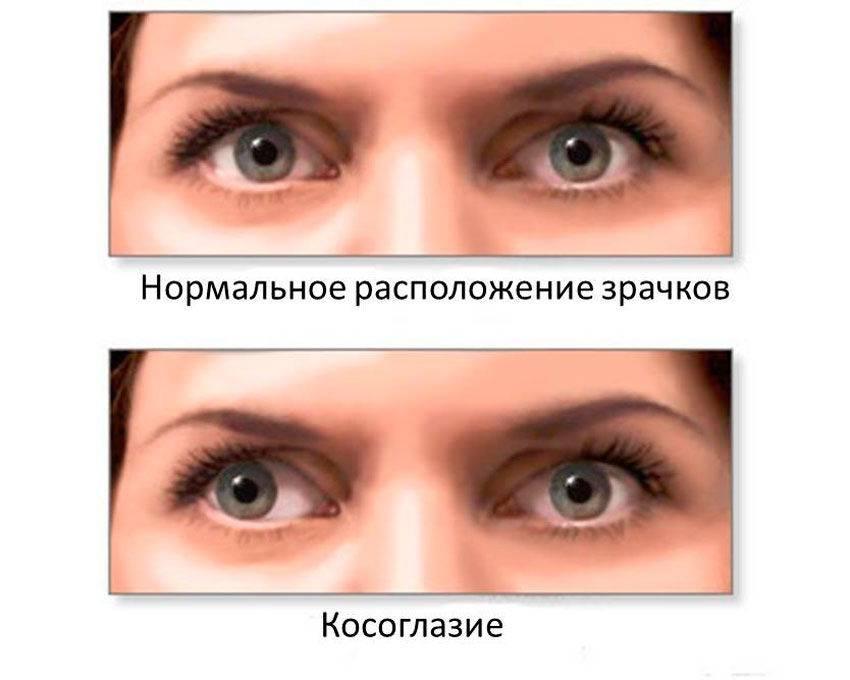 Как определить косоглазие: офтальмологические процедуры