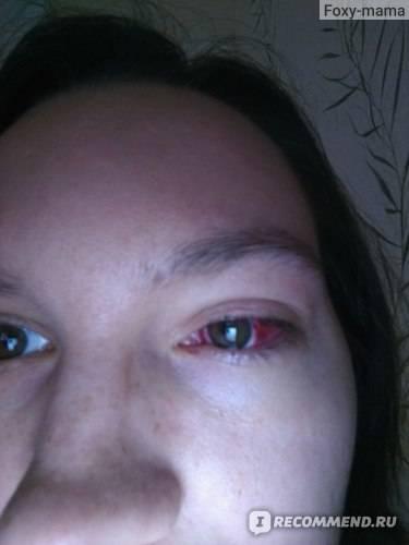 Косоглазие у детей. лечение | мнтк «микрохирургия глаза» им. акад. с.н. федорова