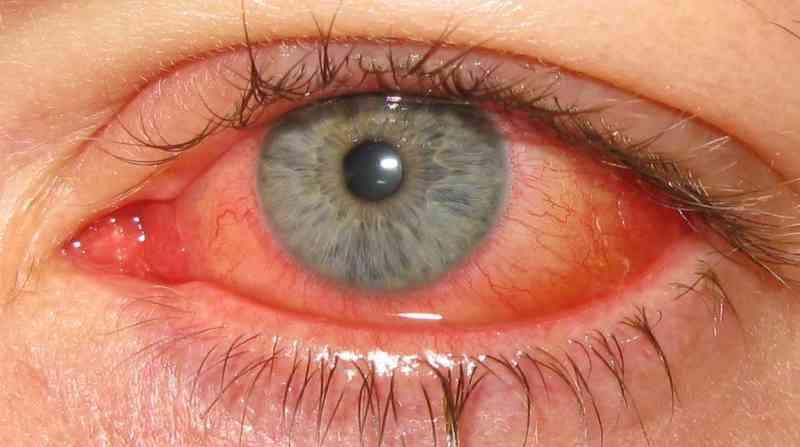 """Герпетический конъюнктивит: причины, симптомы, лечение """"здоровое око"""""""
