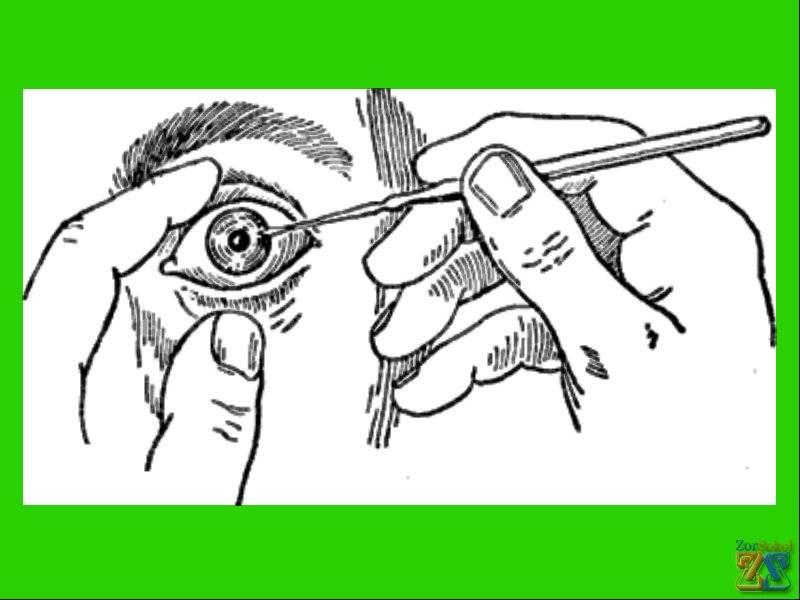 Как вытащить соринку из глаза самому народными средствами