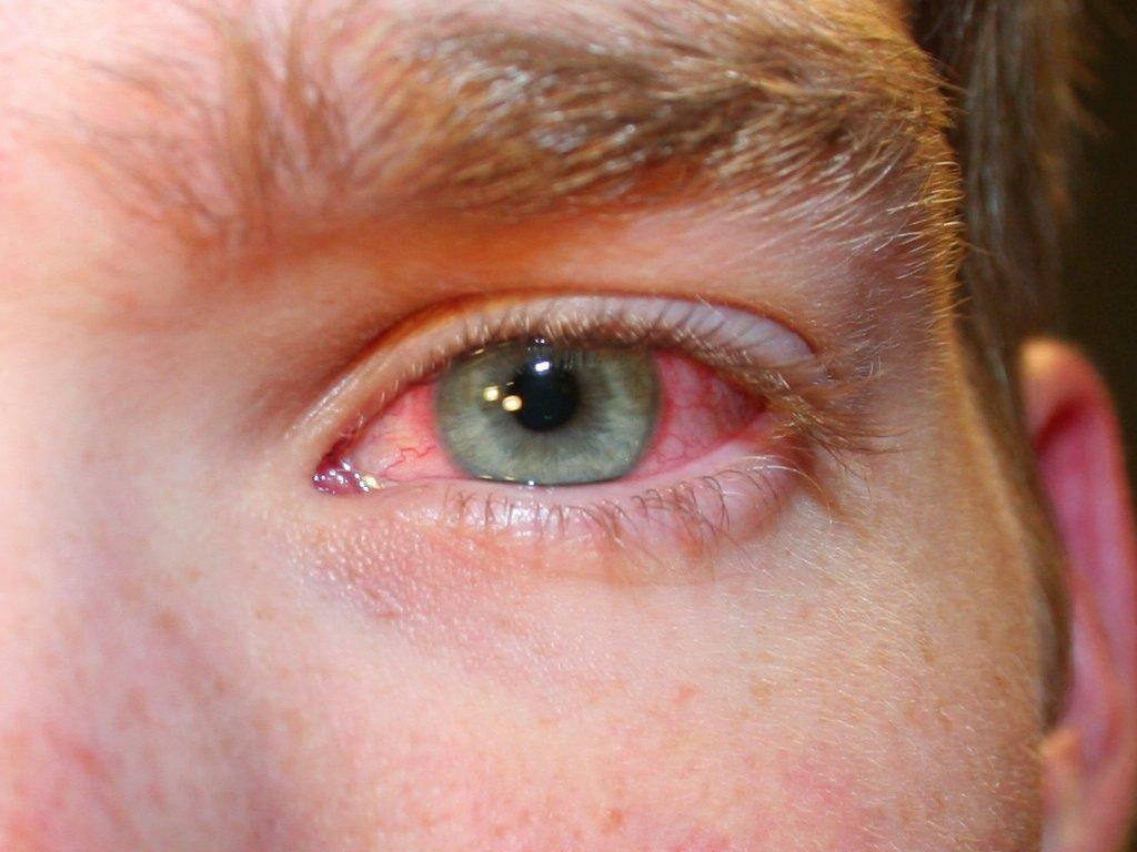 Вдруг появились неприятные симптомы, что это может быть? из-за чего глаз красный, болит и слезится