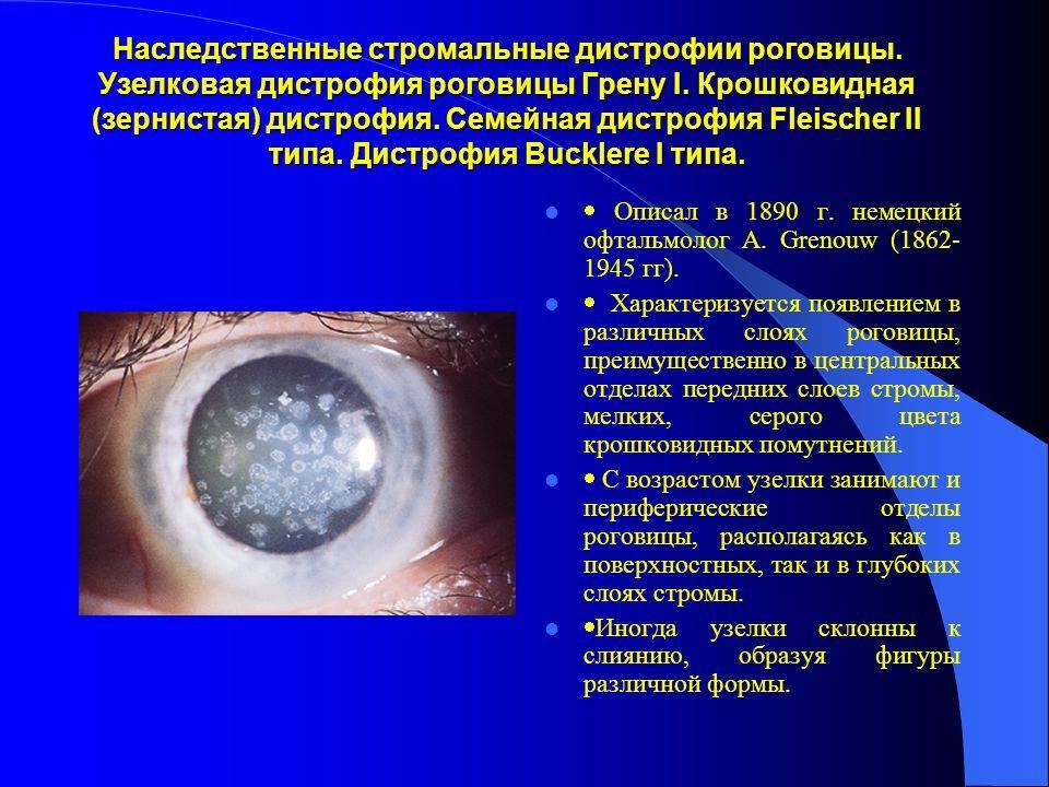 Дистрофия (дегенерация) роговицы | симптомы и лечение дистрофии роговицы | компетентно о здоровье на ilive