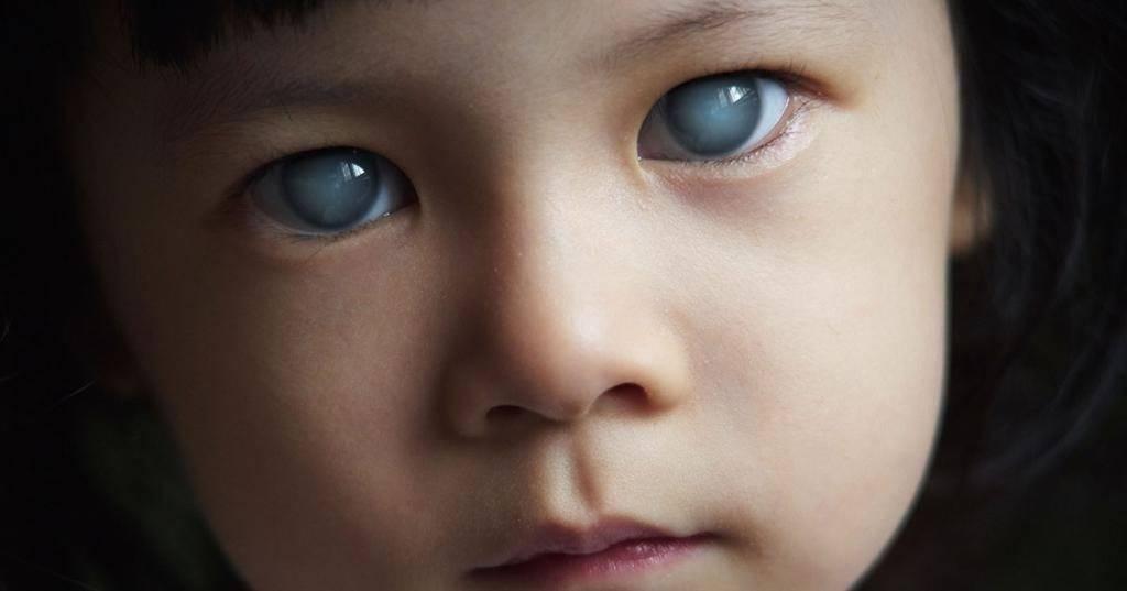 Врожденная катаракта у детей: категории детей с нарушениями зрения, каковы виды, причины возникновения такого заболевания и лечение